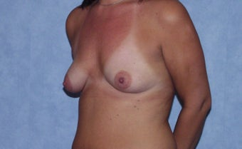 Breast augmentation on a 40 year old, 6 months post-op:  560cc saline breast implants, dual plane, infra-mammary approach.  982802