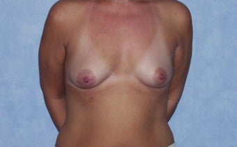 Breast augmentation on a 40 year old, 6 months post-op:  560cc saline breast implants, dual plane, infra-mammary approach.  before 982802