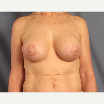55-64 year old woman treated with Breast Lift with Implants after 3537597