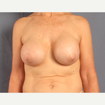 55-64 year old woman treated with Breast Lift with Implants before 3537597