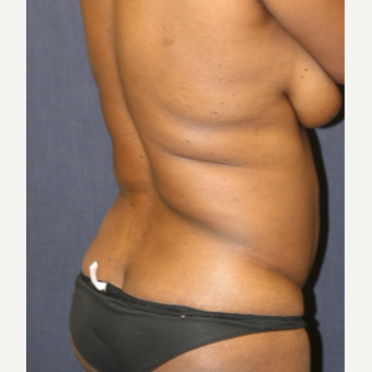 43 year old woman treated with Butt Augmentation before 3663927