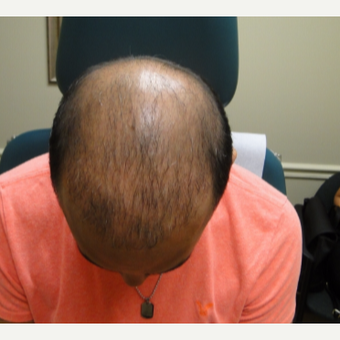 25-34 year old hispanic male patient treated with PRP for Hair Loss after 3195559