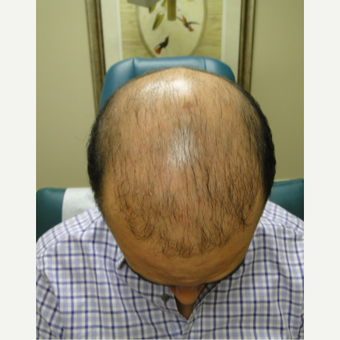 25-34 year old hispanic male patient treated with PRP for Hair Loss before 3195559