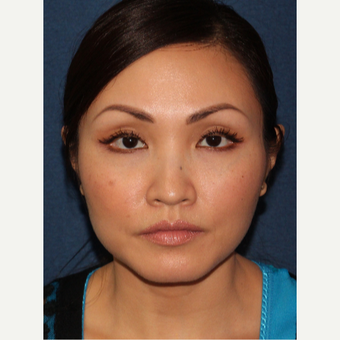 35-44 year old woman treated with Botox after 3244595