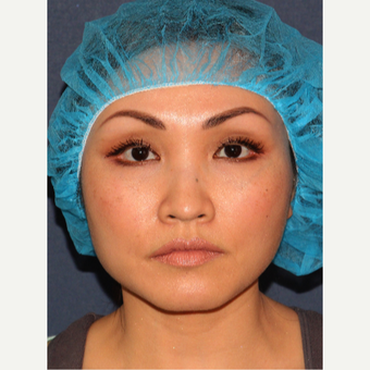 35-44 year old woman treated with Botox before 3244595