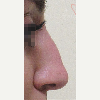 25-34 year old woman treated with Non Surgical Nose Job before 3216739