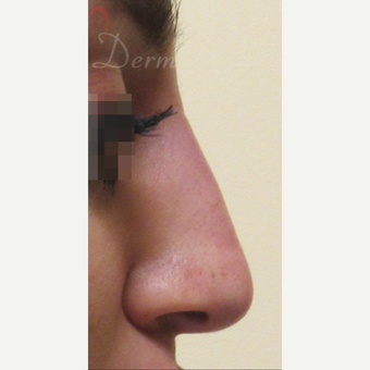 25-34 year old woman treated with Non Surgical Nose Job after 3216739