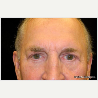 65-74 year old man treated with Eye Bags Treatment after 3651198