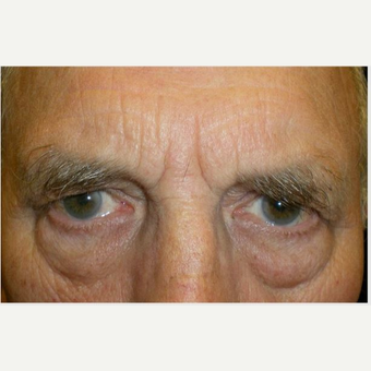 65-74 year old man treated with Eye Bags Treatment before 3651198