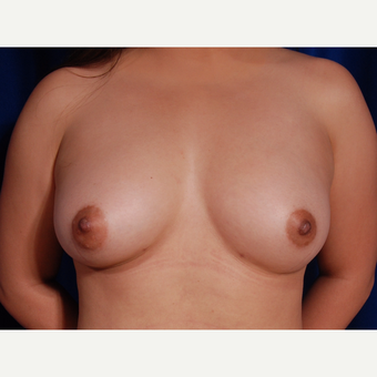 25-34 year old woman treated with Breast Fat Transfer after 3731818