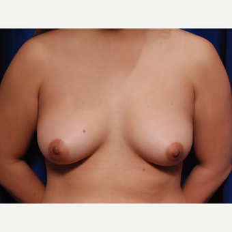 25-34 year old woman treated with Breast Fat Transfer before 3731818