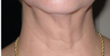 55-64 year old woman treated with Skintyte after 3032091