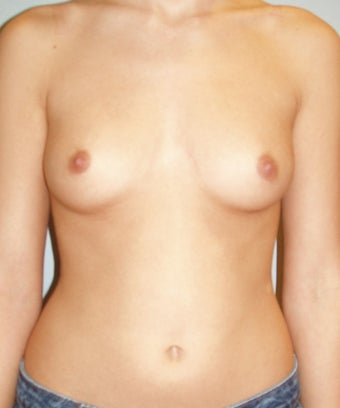 23 year old breast augmentation with silicone implants A to full C before 885908