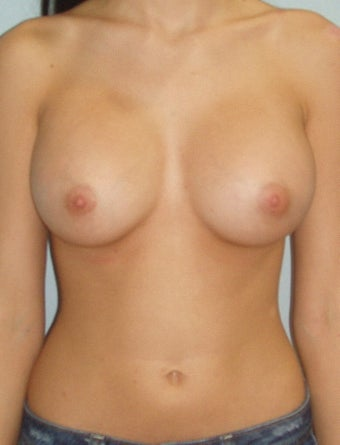 23 year old breast augmentation with silicone implants A to full C after 885908