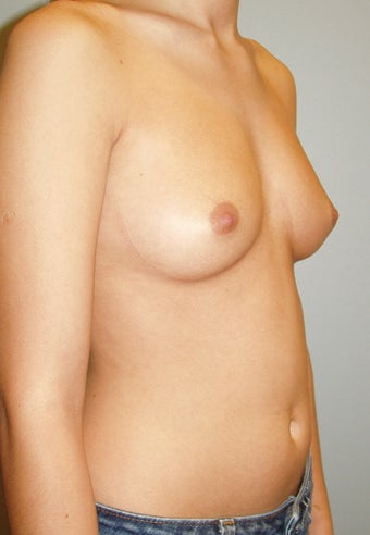 23 year old breast augmentation with silicone implants A to full C 885908