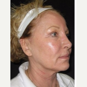 55-64 year old woman treated with Non Surgical Face Lift before 3181400