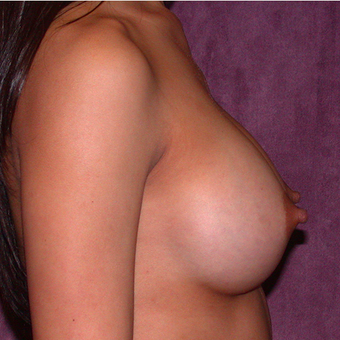 Breast Implants after 3033260