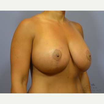 25-34 year old woman treated with Breast Lift with Implants after 3386478