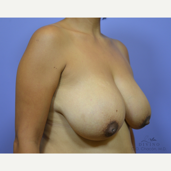 35-44 year old woman treated with Breast Lift before 3420163