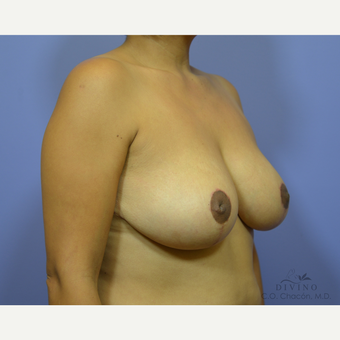 35-44 year old woman treated with Breast Lift after 3420163