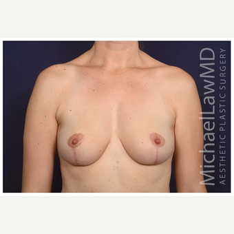 35-44 year old woman treated with Breast Lift after 3103444