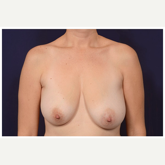 35-44 year old woman treated with Breast Lift before 3103444