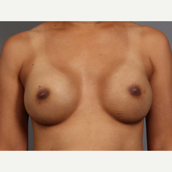 35-44 year old woman treated with Breast Reconstruction, BRCA+ after 3494476