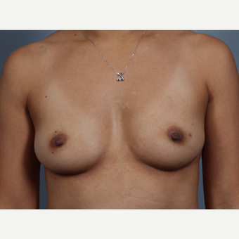 35-44 year old woman treated with Breast Reconstruction, BRCA+ before 3494476