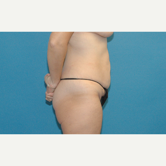 45 year old woman treated with Tummy Tuck before 3454084