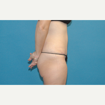 45 year old woman treated with Tummy Tuck after 3454084