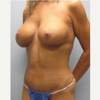 38 year old woman treated with Mommy Makeover after 3468535
