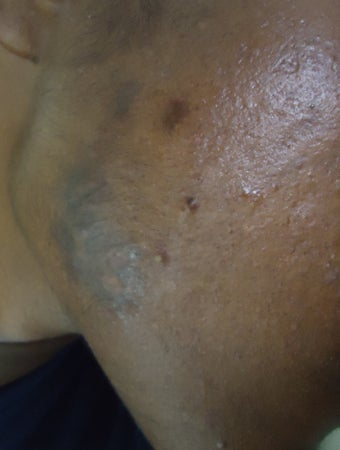 Acne keloids treated with Bleomycin after 653961