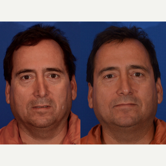 45-54 year old man treated with Revision Rhinoplasty before 3240886
