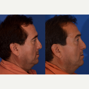 45-54 year old man treated with Revision Rhinoplasty after 3240886
