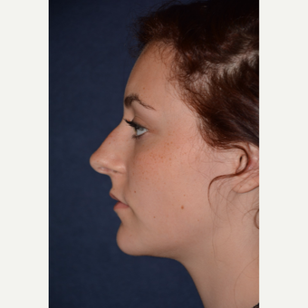 17 or under year old woman treated with Rhinoplasty before 3467150