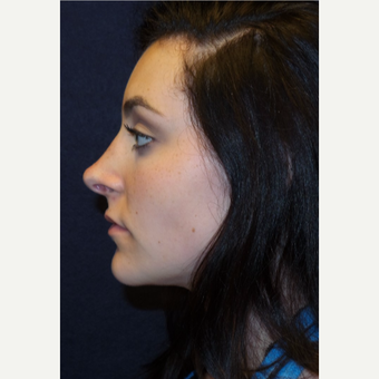 17 or under year old woman treated with Rhinoplasty after 3467150