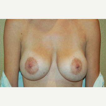 25-34 year old woman treated with Breast Implant Revision before 3798937