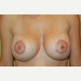25-34 year old woman treated with Breast Implant Revision after 3798937
