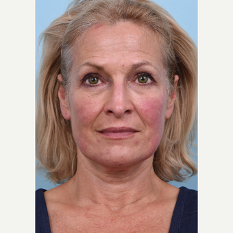 55 year old woman treated with Liquid Facelift before 3610767