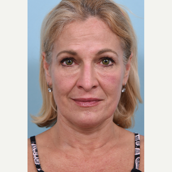 55 year old woman treated with Liquid Facelift after 3610767