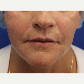 59 year old woman treated with Bellafill for volume loss to mid face after 2120599