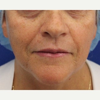 59 year old woman treated with Bellafill for volume loss to mid face before 2120599