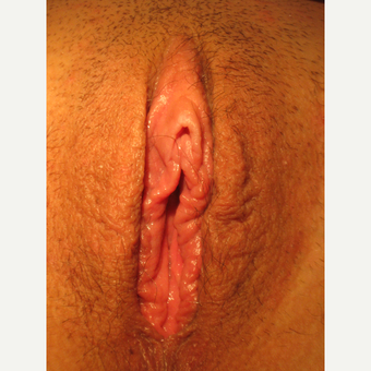 18-24 year old woman treated with Labiaplasty after 3700419
