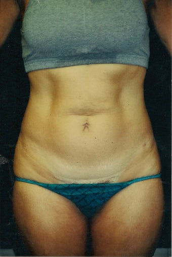 Tummy Tuck - Three year follow-up before 1372447
