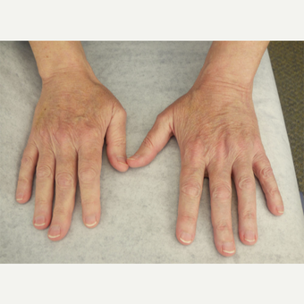 62 year old woman treated with Radiesse for hands after 3140180
