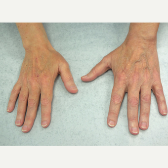 62 year old woman treated with Radiesse for hands before 3140180
