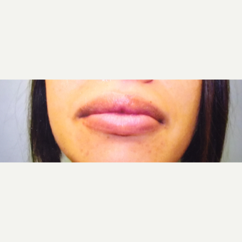 25-34 year old woman treated with Fat Transfer to lips after 3379063