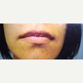 25-34 year old woman treated with Fat Transfer to lips before 3379063