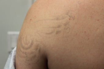 PicoSure Laser Tattoo Removal  after 1170730