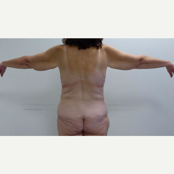 45-54 year old woman treated with Body Lift before 3091133